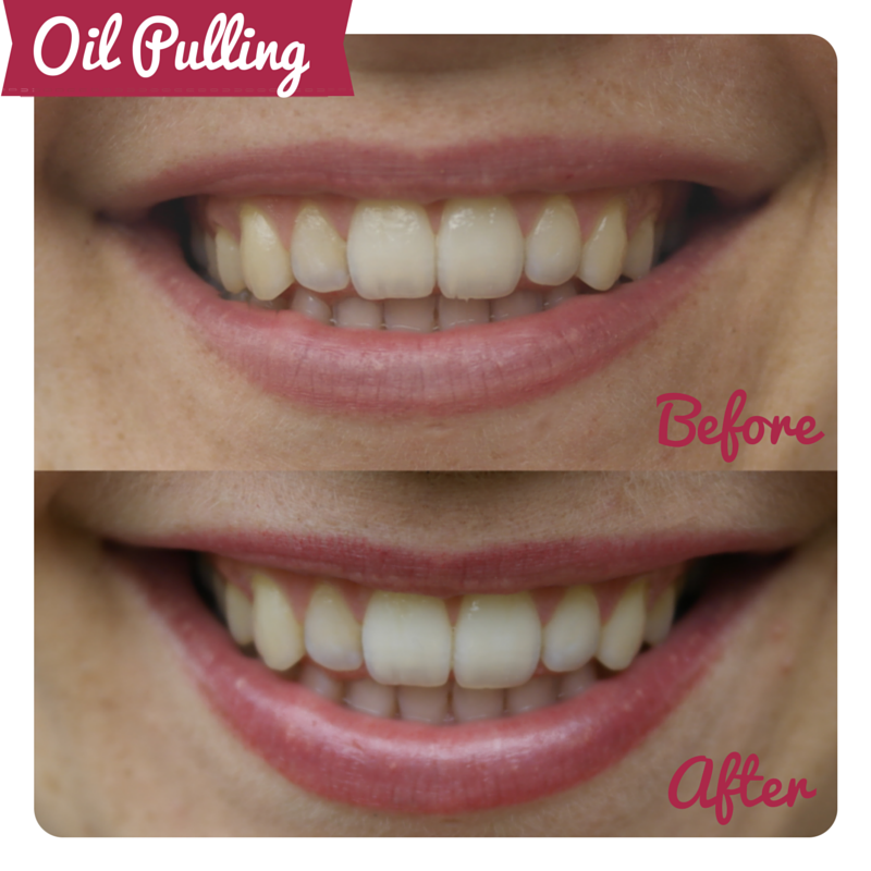 Oil Pulling for teeth whitening