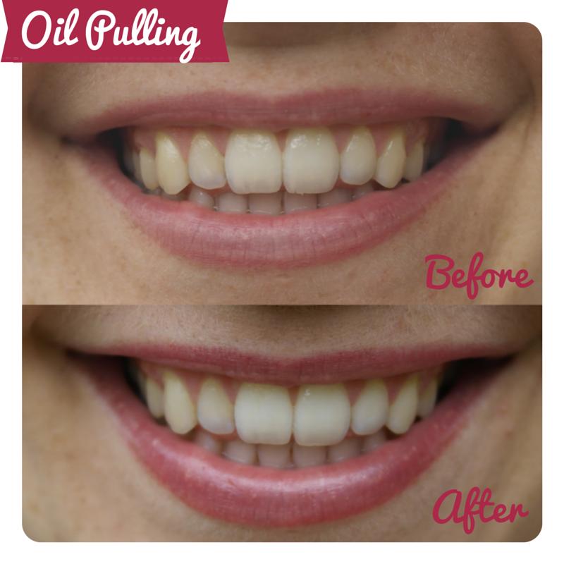 Oil Pulling for teeth whitening