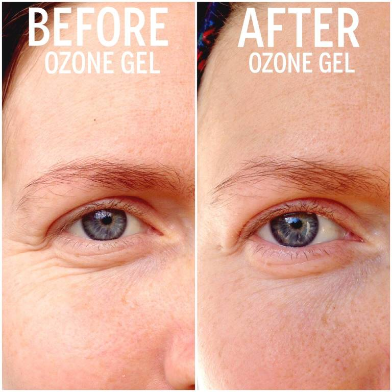 Ozone Gel Before After wrinkles
