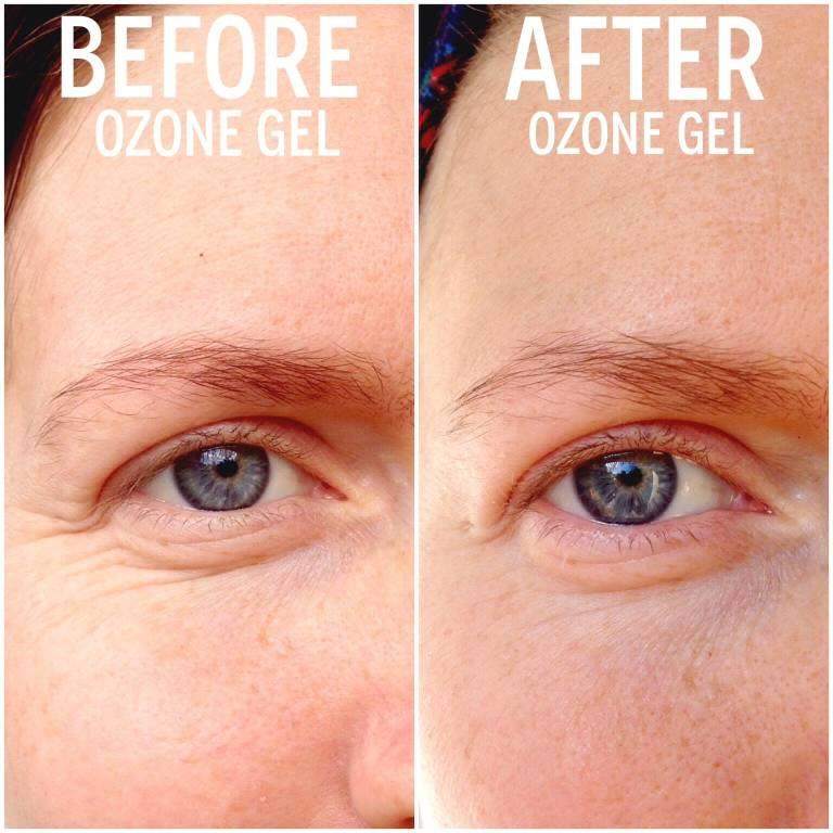Ozone Gel Before After wrinkles